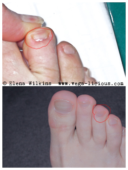"Get rid of toenail fungus by soaking your feet in Listerine ""SENIOR ..."